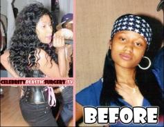 NiCki Minaj avant/après la chirurgie (fesses, poitrine ?) et Nicki Minaj jeune, adolescente