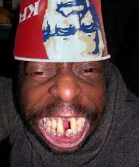 Un homme qui a perdu ses dents de devant et fait des grimaces