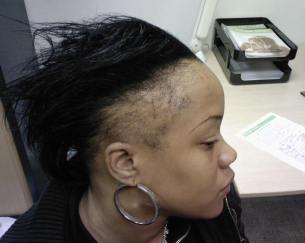 Ici la perte des cheveux est particulièrement due aux défrisages et port d'extensions, mais la consommation de fer aide à ralentir la chute et la casse.