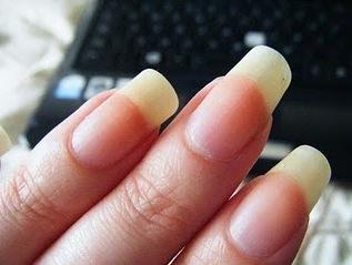 Les ongles jaunes