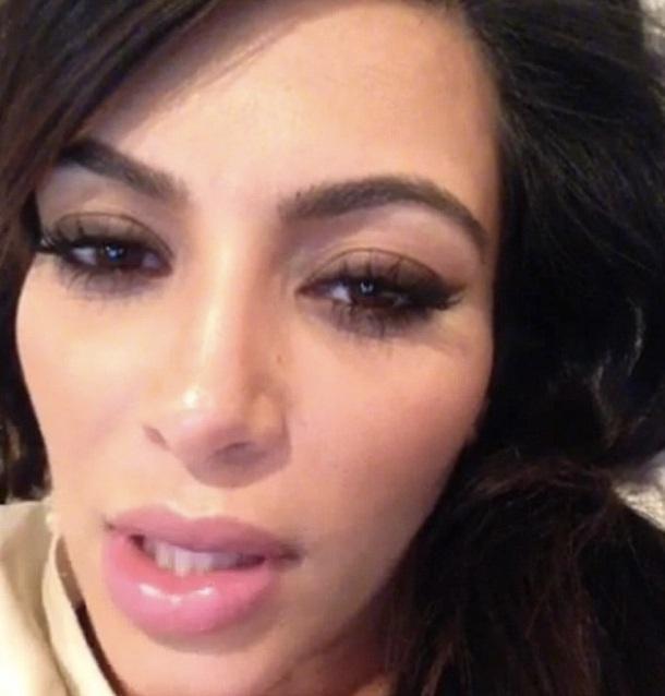 kim kardashian botox