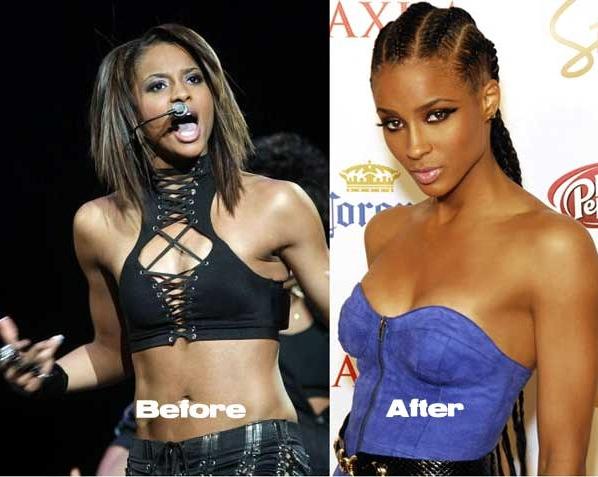 Ciara : s'est fait refaire legèrement la poitrine - chirurgie