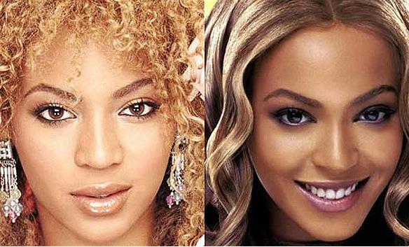 Beyonce : chirurgie du nez