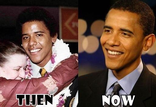 Barack Obama : chirurgie du nez