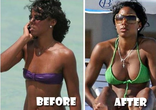 Kelly Rowland : chirurgie de la poitrine