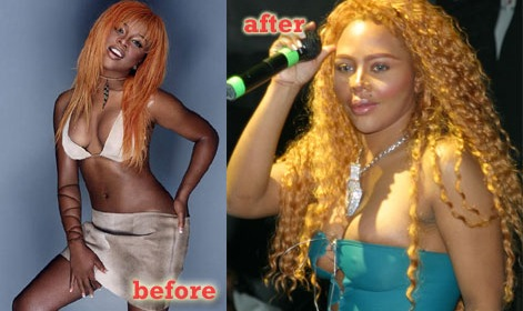 Lil Kim : chirurgie plastique totale
