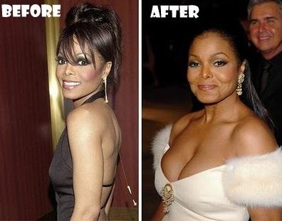 Janet Jackson (jeune) : avant/après chirurgie du nez