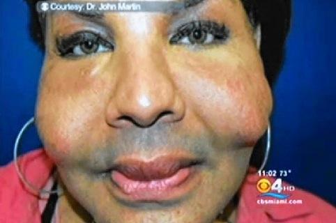La victime transexuelle d'Oneal Ron morris révélait son visage : Rajee Rajindra Narinesingh