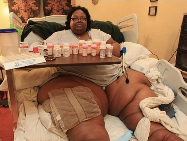 LA FEMME LA PLUS GROSSE DU MONDE PESE 318 KG : PAS D'INTERVENTION MEDICALE POSSIBLE - Terri Smith