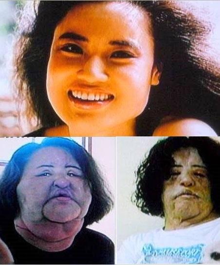 UNE FEMME COREENNE ACCRO A LA CHIRURGIE S'INJECTE DE L'HUILE DE FRITURE DANS LE VISAGE - Hang Mioku