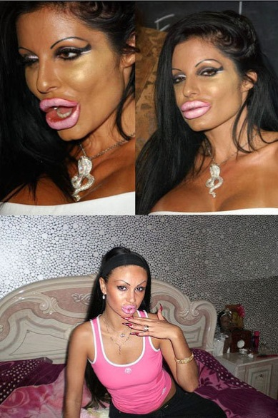 Injection botox lèvres ratées