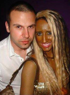 Une fille blanche devenue noire - abus de cabines de bronzage