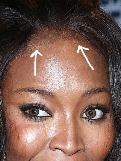 2. Naomi Campbell (alopécie, calvitie, raté perruque, mauvaise lace wig, etc)