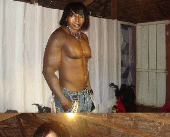 UN MEC MOCHE... TRES MOCHE (bodybuilding et chirurgie ?)