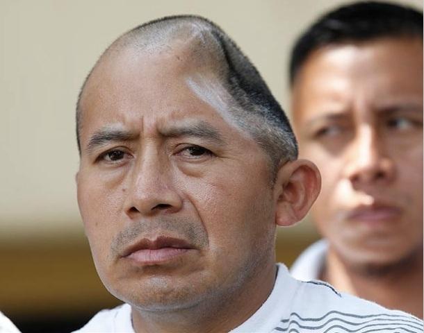 ANTONIO LOPEZ CHAZ : 58 MILLIONS DE DOLLARS VERSES A L'HOMME QUI NE POSSEDE PLUS QU'UNE MOITIE DE CRANE