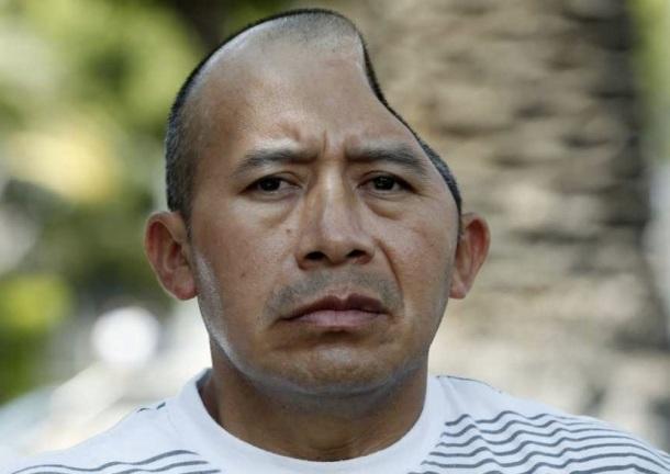 ANTONIO LOPEZ CHAZ : 58 MILLIONS DE DOLLARS SERONT VERSES A L'HOMME QUI NE POSSEDE PLUS QU'UNE MOITIE DE CRANE